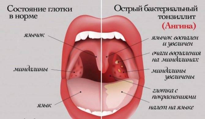Болит горло красные точки на задней стенке горла