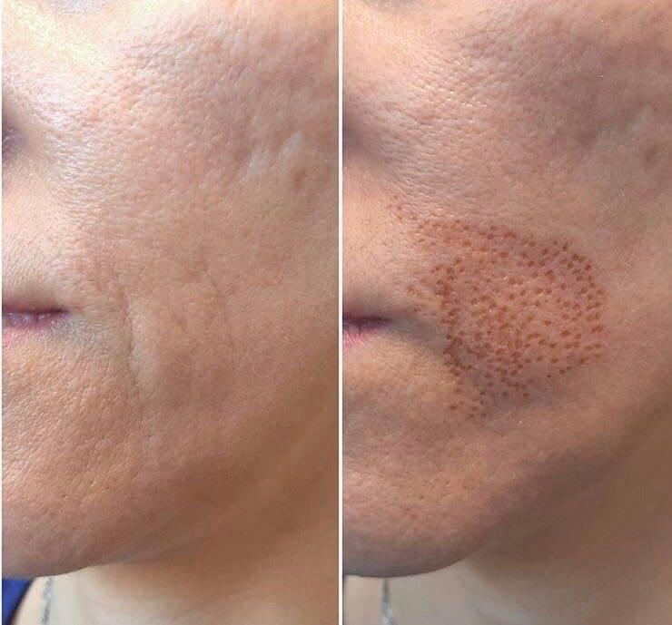 Уход за кожей после лазерной эпиляции