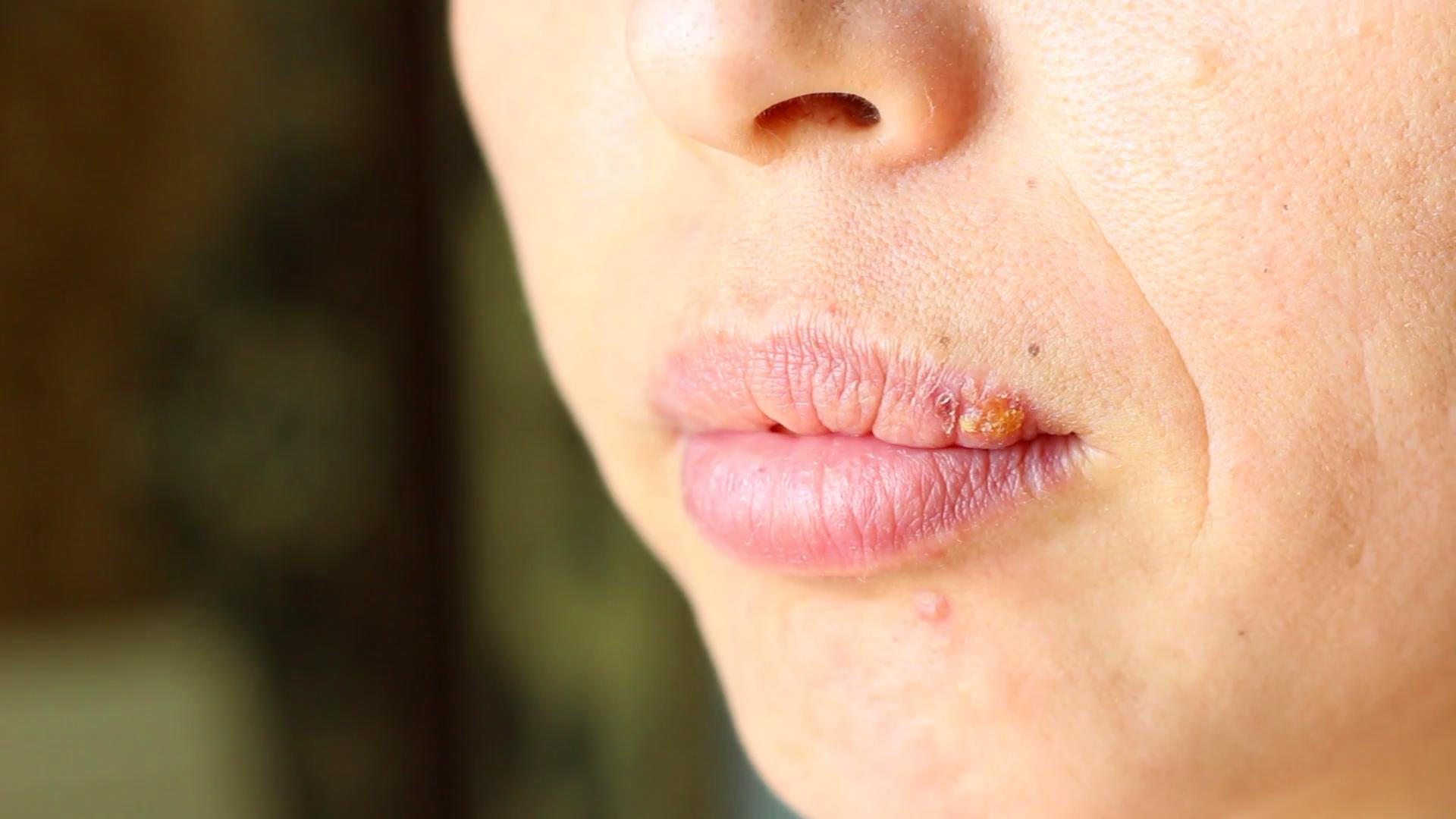 Как лечить язву на внутренней стороне губы