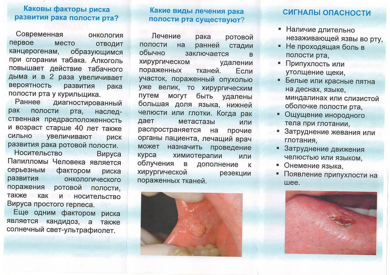 Язвы во рту: причины и лечение