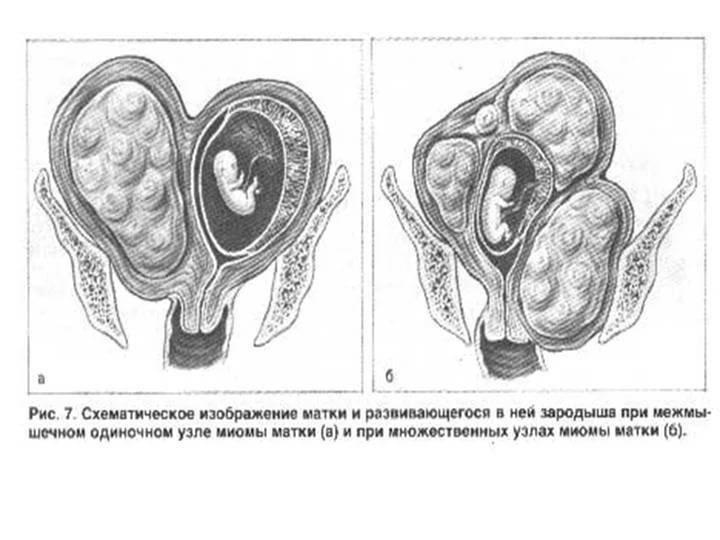 Плотная матка: что это значит, основные причины и лечение