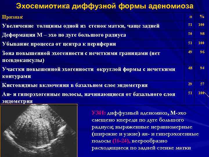 Диффузное изменение миометрия - частая гинекологическая проблема