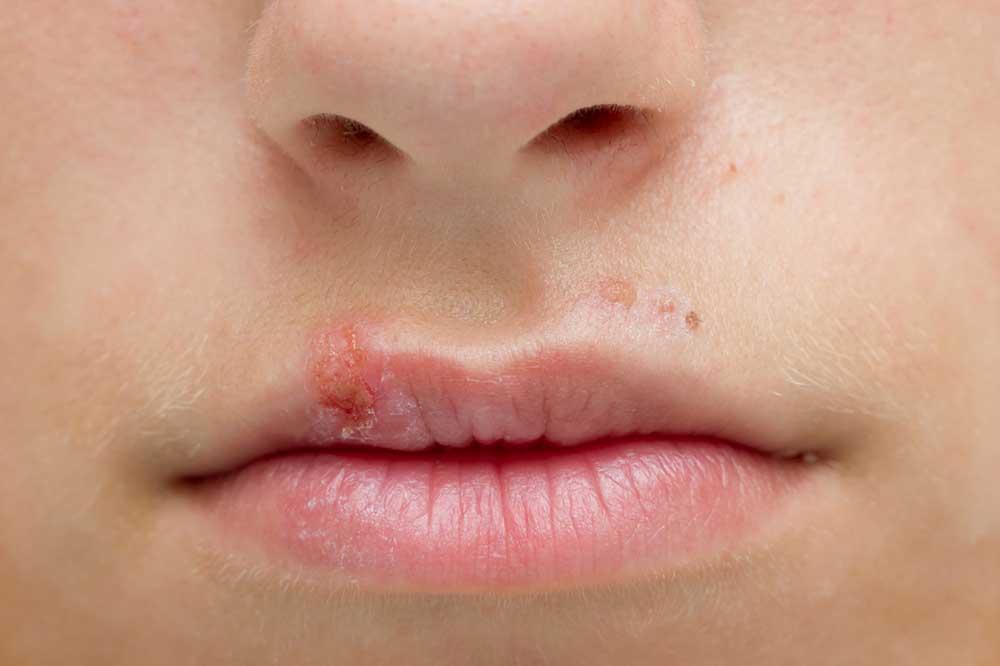 Болячки на губах: разновидности язвочек, причины, симптомы