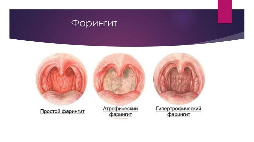 Белые прыщи в горле: причины, возможные заболевания, методы лечения, отзывы
