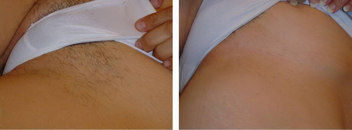 Лазерная эпиляция зоны бикини: преимущества и противопоказания процедуры