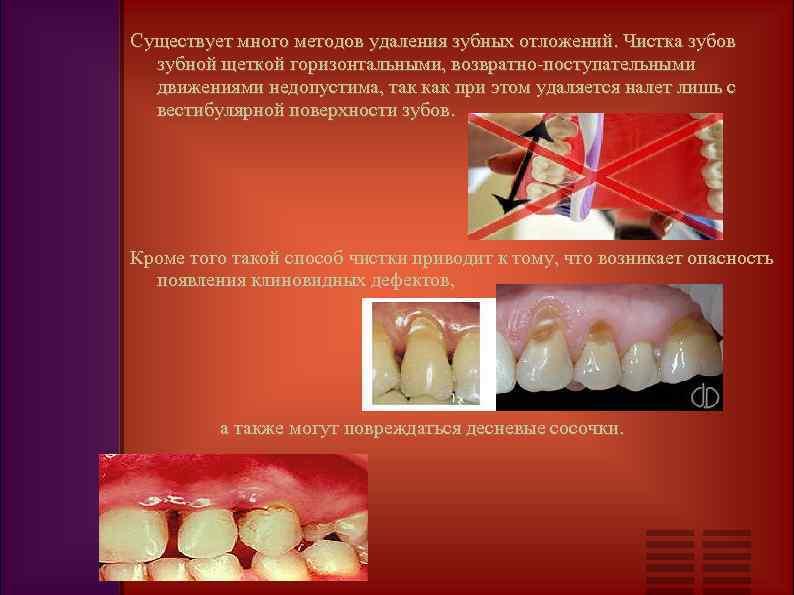 Как чистить зубы после удаления зуба мудрости со швами