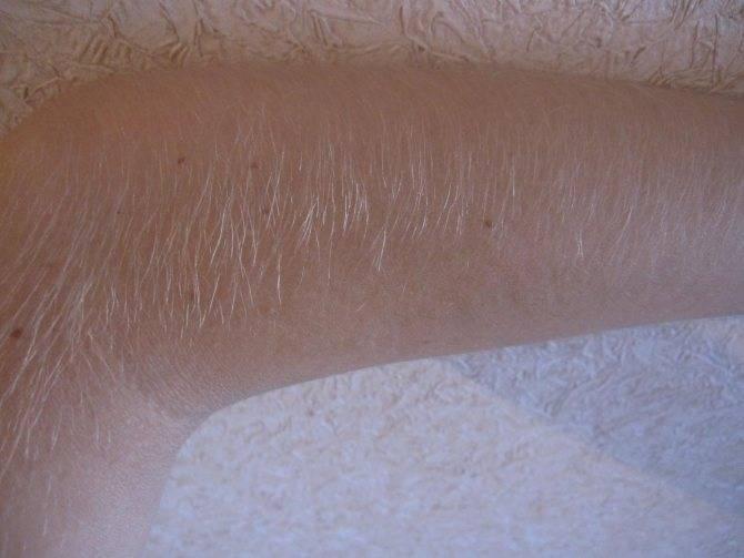 Сколько должны быть волосы для шугаринга