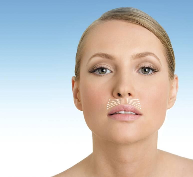 Кисетные морщины над верхней губой: коррекция, причины, профилактика