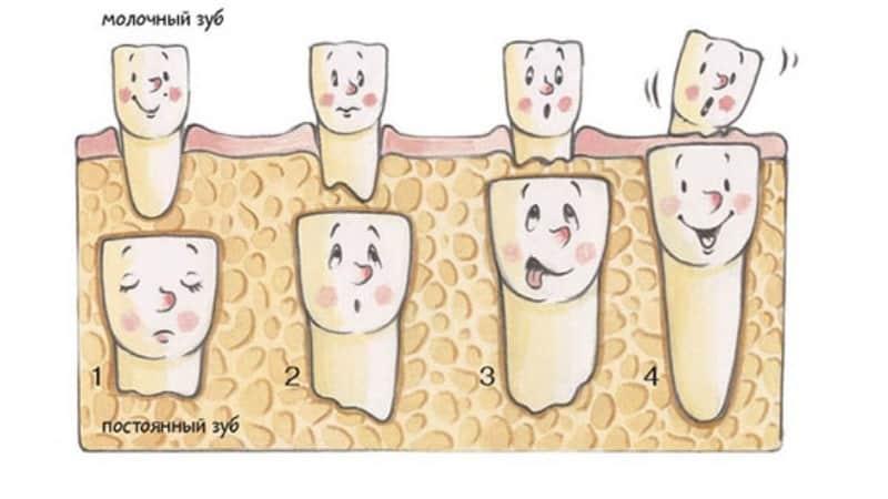 Как отличить молочный зуб от постоянного