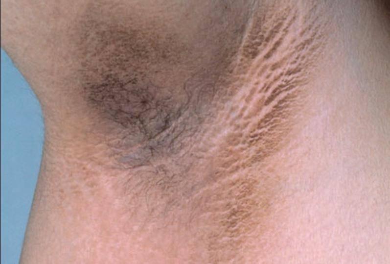 Сухость кожи у беременных: причины и способы устранения