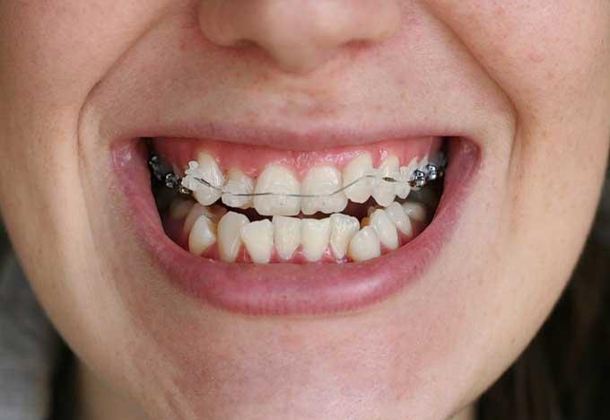 После брекетов разъехались зубы — красота улыбки под угрозой