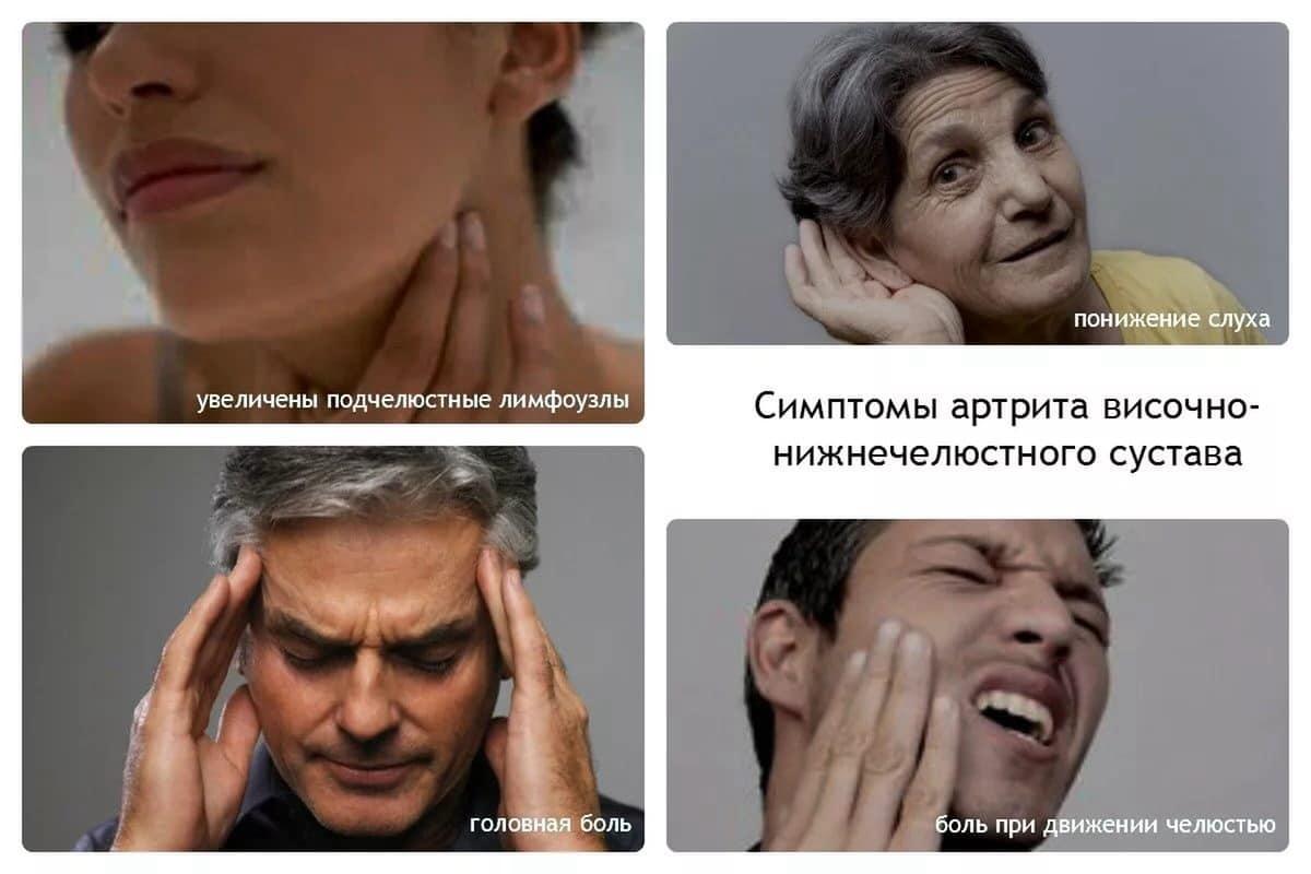 Условия возникновения и признаки артрита височно-челюстного сустава