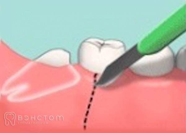 Удалили зуб – что можно делать после этого, а что нельзя?