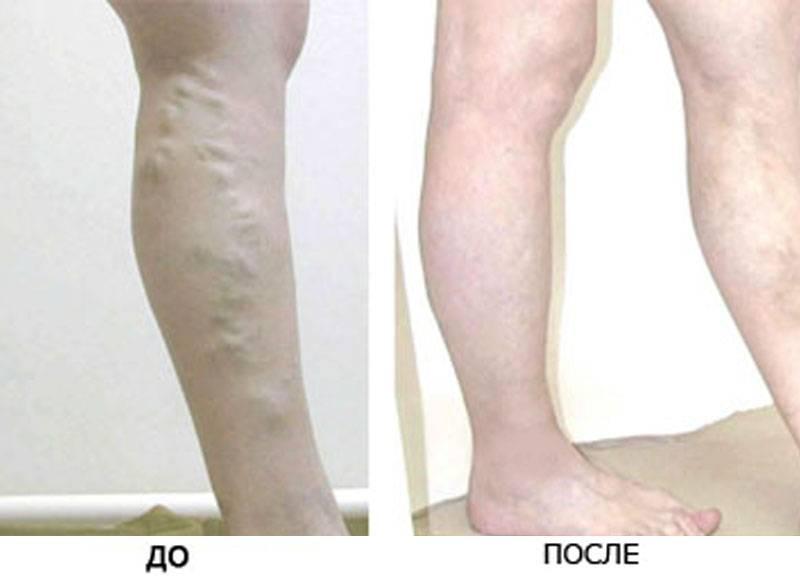 Склеротерапия: противопоказания, осложнения и последствия