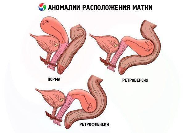 Что означает положение матки антефлексио?