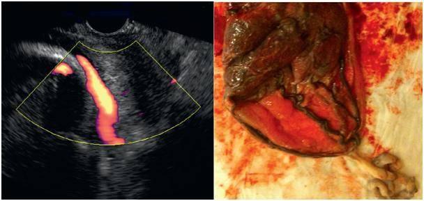 Причины и симптомы гематометры после выскабливания, родов или кесарева сечения, диагностика и лечение патологии
