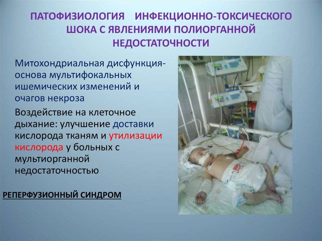 Опасность использования тампонов: синдром токсического шока