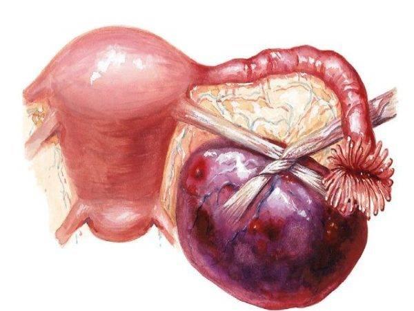 Причины и лечение кисты левого яичника