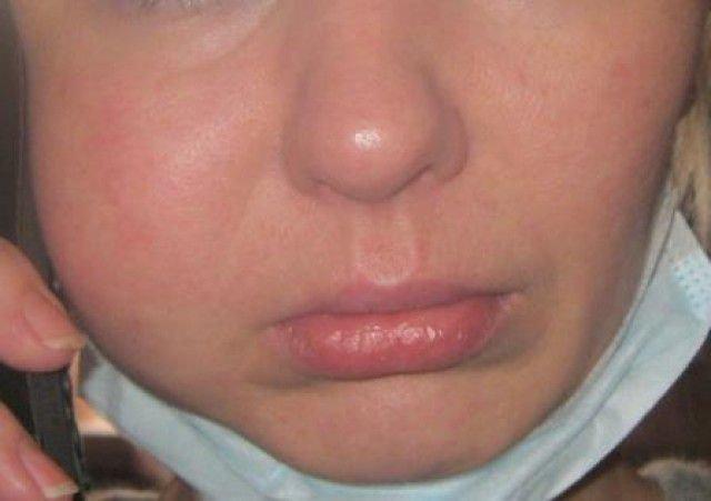 Опухла десна после удаления зуба — что делать