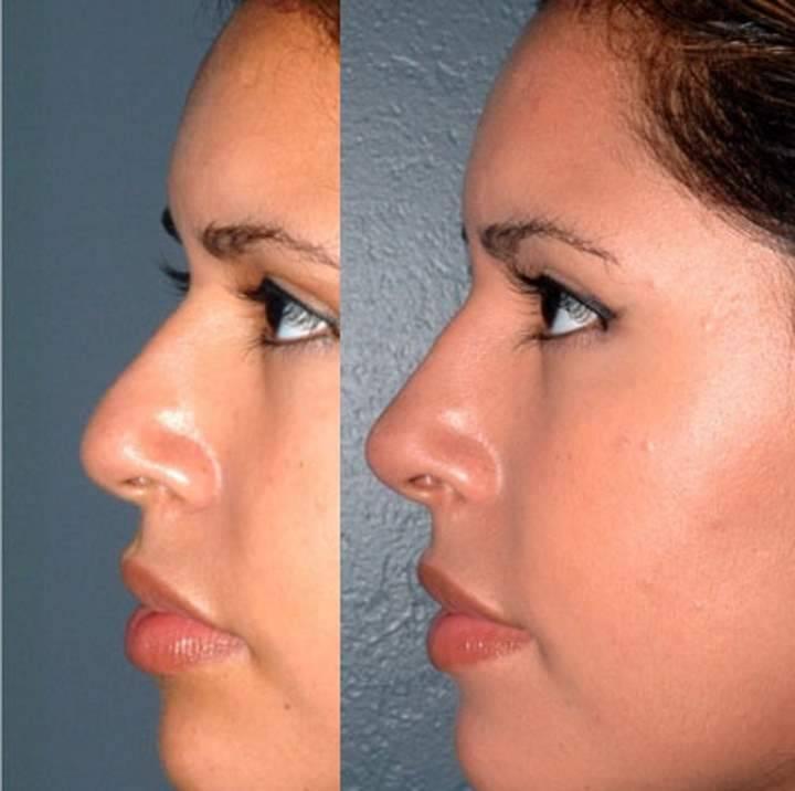 Безоперационная ринопластика носа – коррекция без операции (2019)