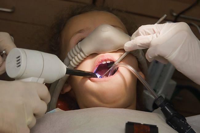 Удаляют ли зубы под общим наркозом