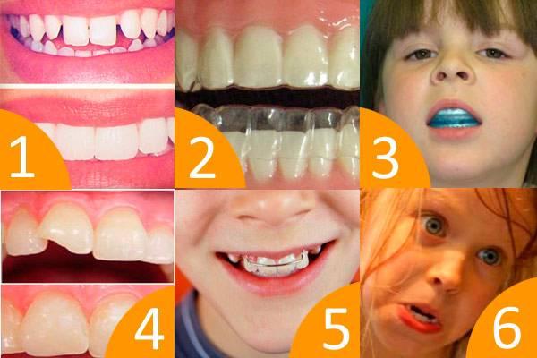 Как выровнять зубы без брекетов взрослым и детям