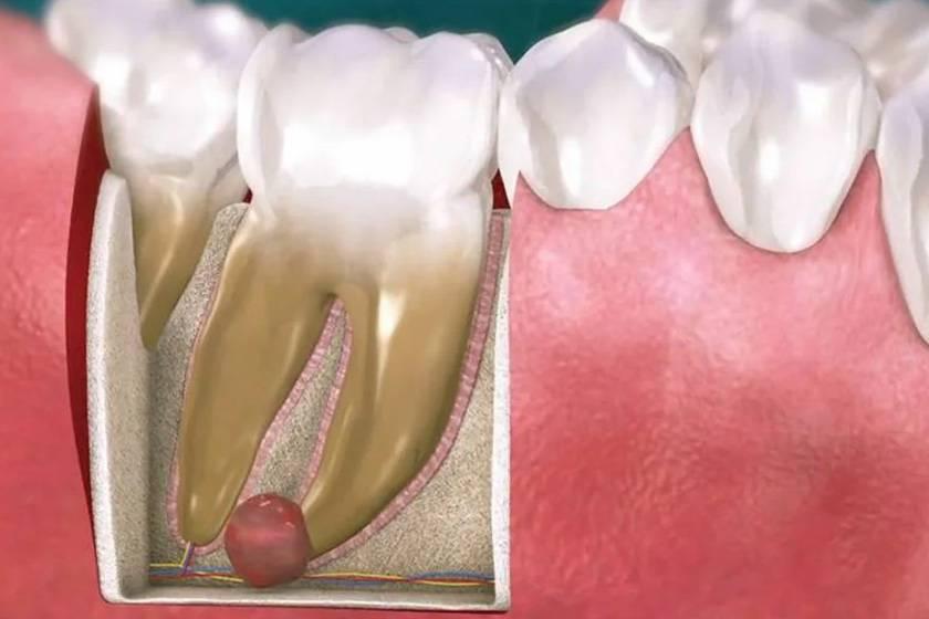 Почему гноится зуб после удаления и как лечить, чтобы не возникло осложнений?
