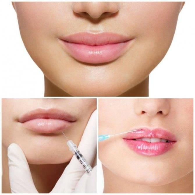 Какие упражнения для губ самые эффективные?