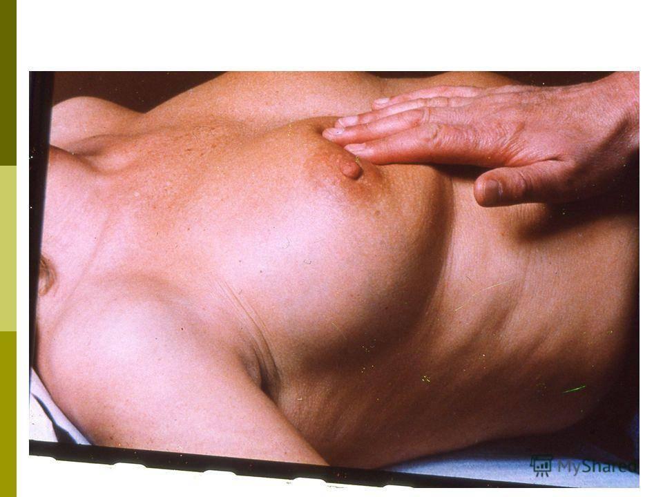 Что такое птоз молочных желез и как восстановить форму груди
