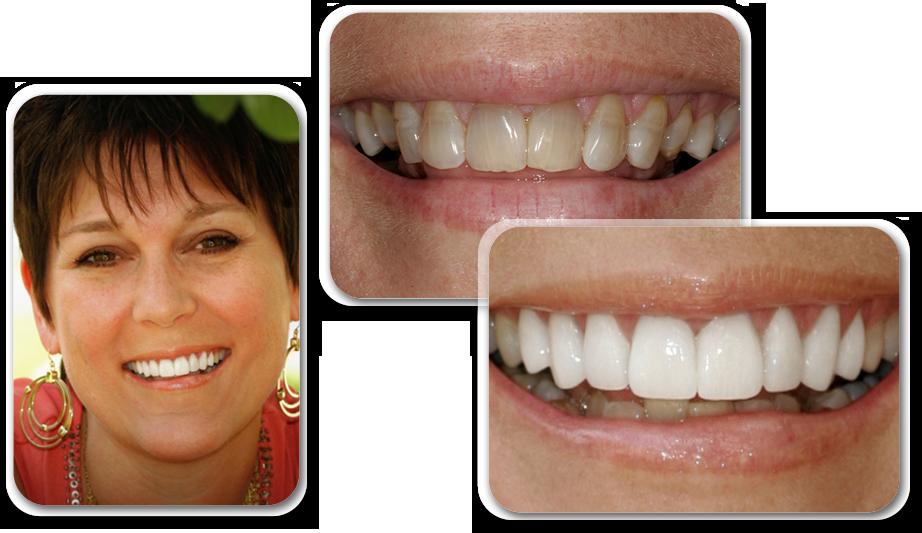 Люминиры на зубы: фото и отзывы