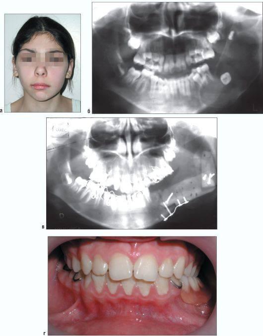 Одонтома нижней челюсти: причины, симптомы, диагностика, лечение, профилактика