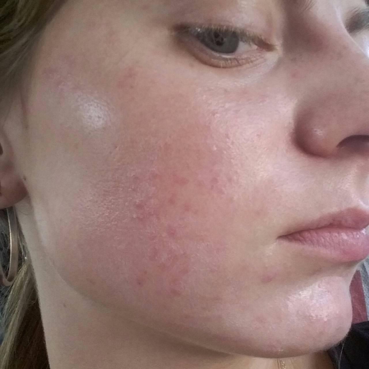 Сыпь на теле у взрослого чешется – что это может быть?