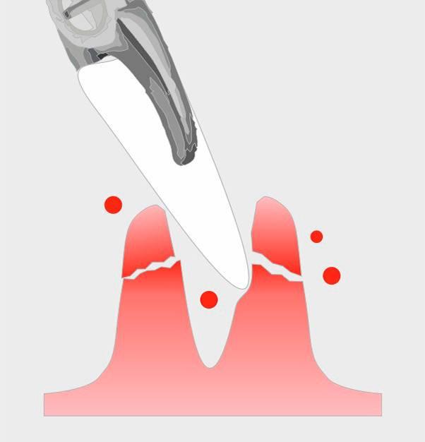 Кровотечение десен – причины, как остановить, чем полоскать?