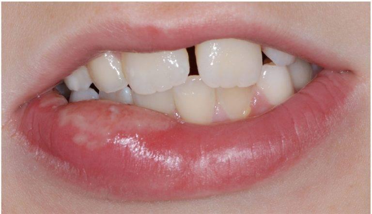 Язвочка на губе с внутренней стороны