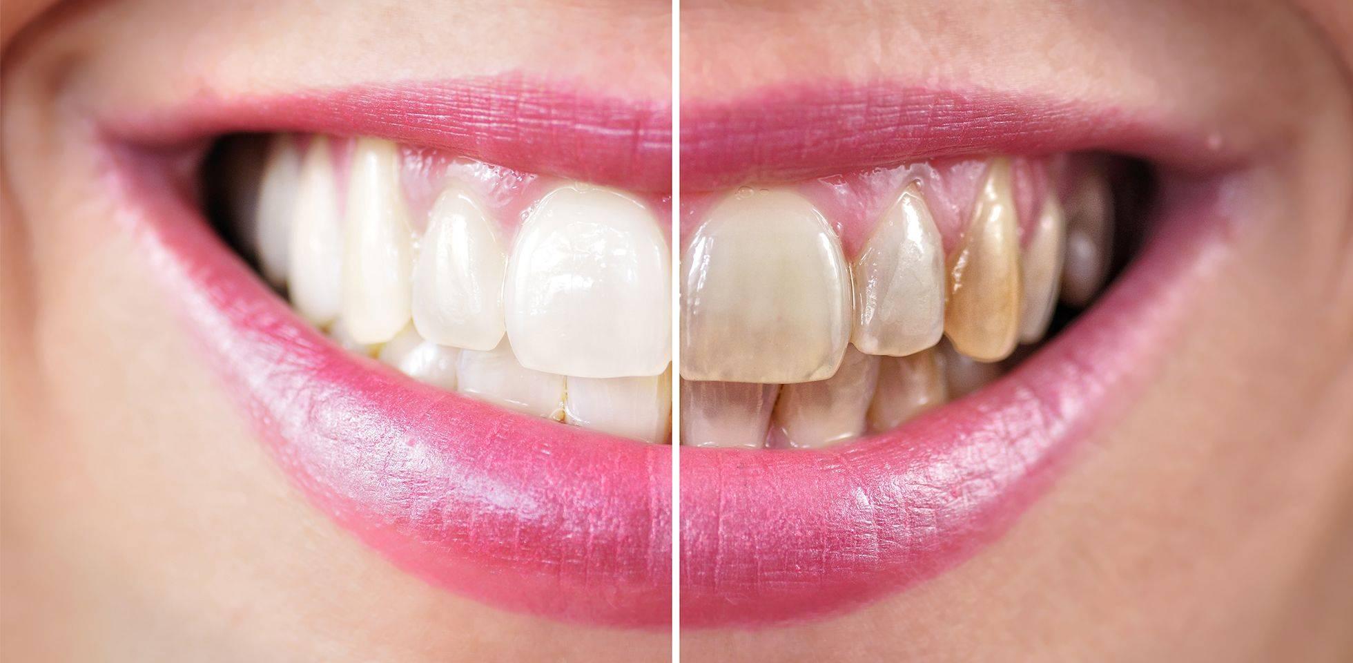 Почему желтеет эмаль: причины желтых зубов у взрослых, что делать и как их отбелить?