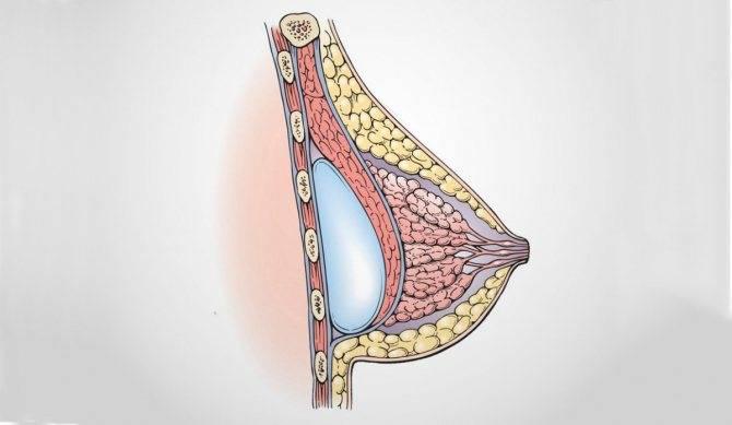 Операции по увеличению груди: виды и особенности