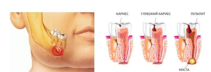 Прыщ во рту на десне над зубом: возможные причины, как лечить