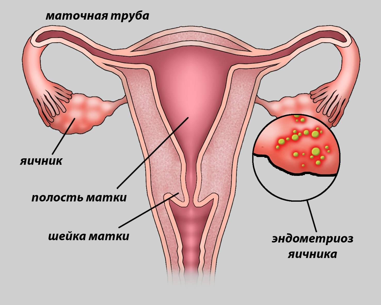 Эндометриоз шейки матки: что это такое, лечение, симптомы, признаки, причины, стадии