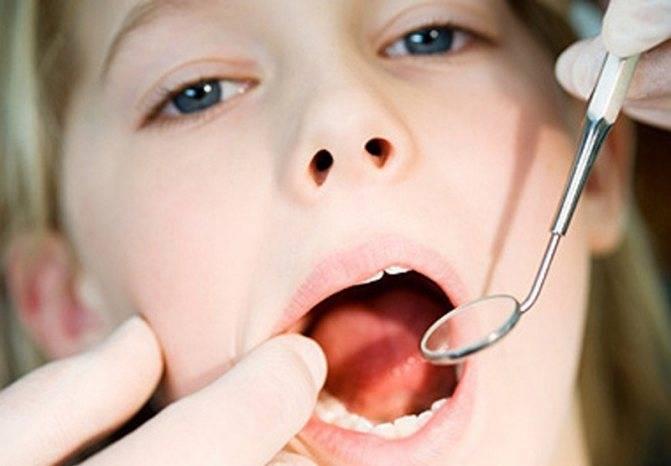 Чем лечить вирусный стоматит у ребенка?