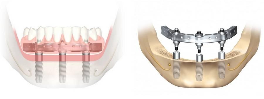 Технологические особенности all on 4 имплантации