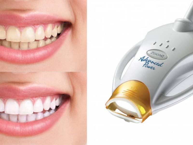 Химическое отбеливание зубов: отзывы, плюсы и минусы, фото до и после