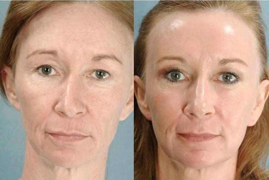 Фотоомоложение лица — показания и противопоказания, фото до и после