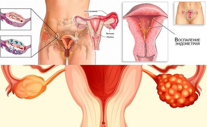 Что не рекомендуется делать при кисте яичника
