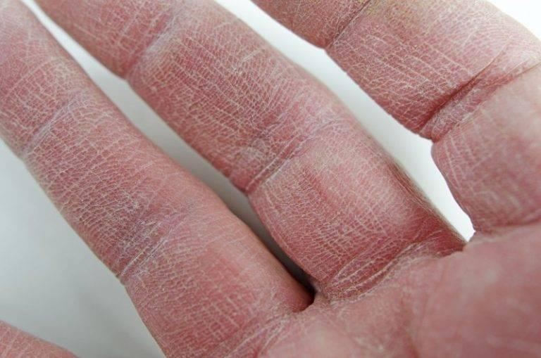Кожа рук трескается и шелушится? витамины и минералы помогут от сухости кожи