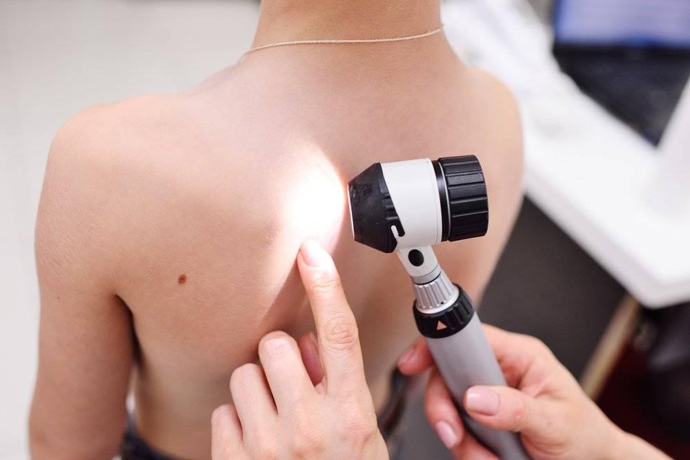 Когда необходима дерматоскопия и что это такое?