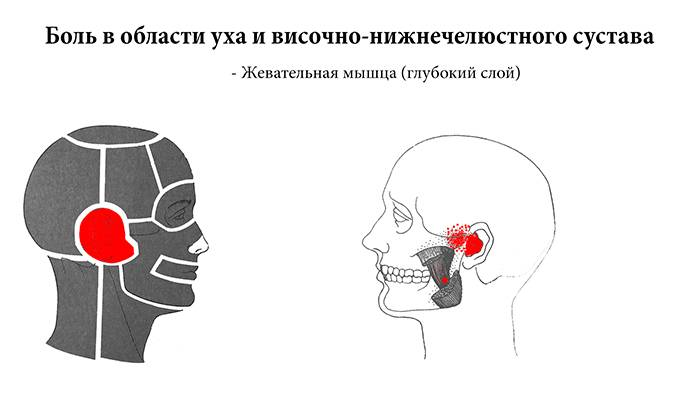 При жевании болит челюсть справа