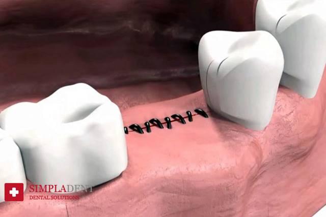 Веские основания для проведения удаления импланта зуба