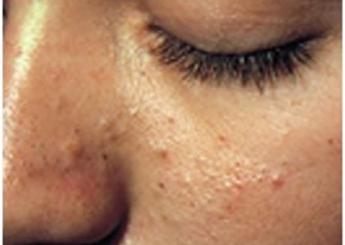 Причины появления гиперкератоза, формы болезни, признаки, лечение
