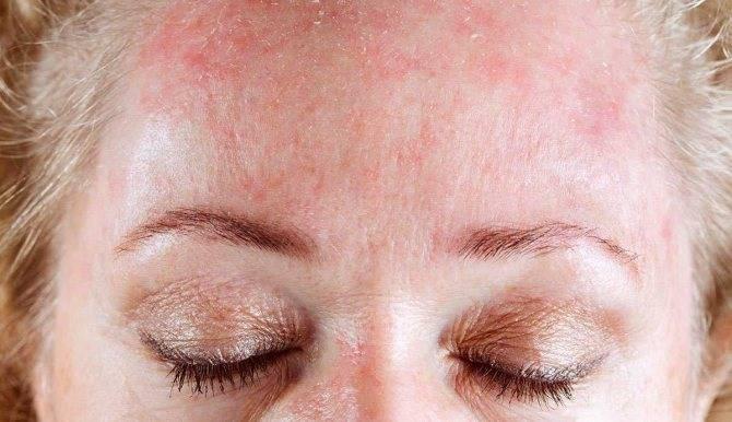 Шелушение кожи на бровях и под ними – причины и лечение