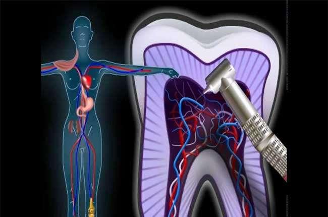 Как и чем убить зубной нерв в стоматологии и домашних условиях